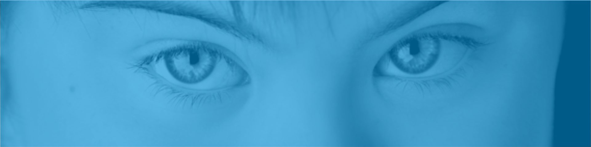 Ojos azules de niñas con Trisomía 21